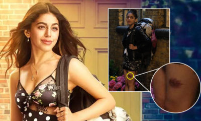 WHAT! Alaya F got a third-degree burn while shooting Jawaani Jaaneman | Bollywood Bubble